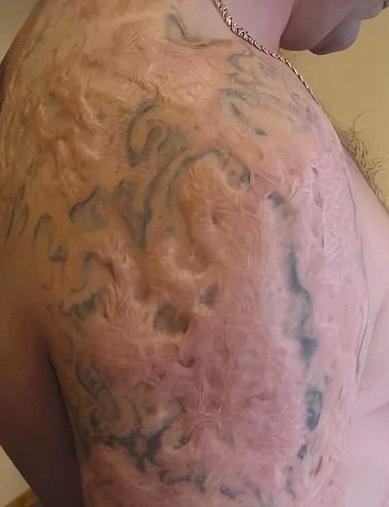 результат удаления тату в домашних условиях